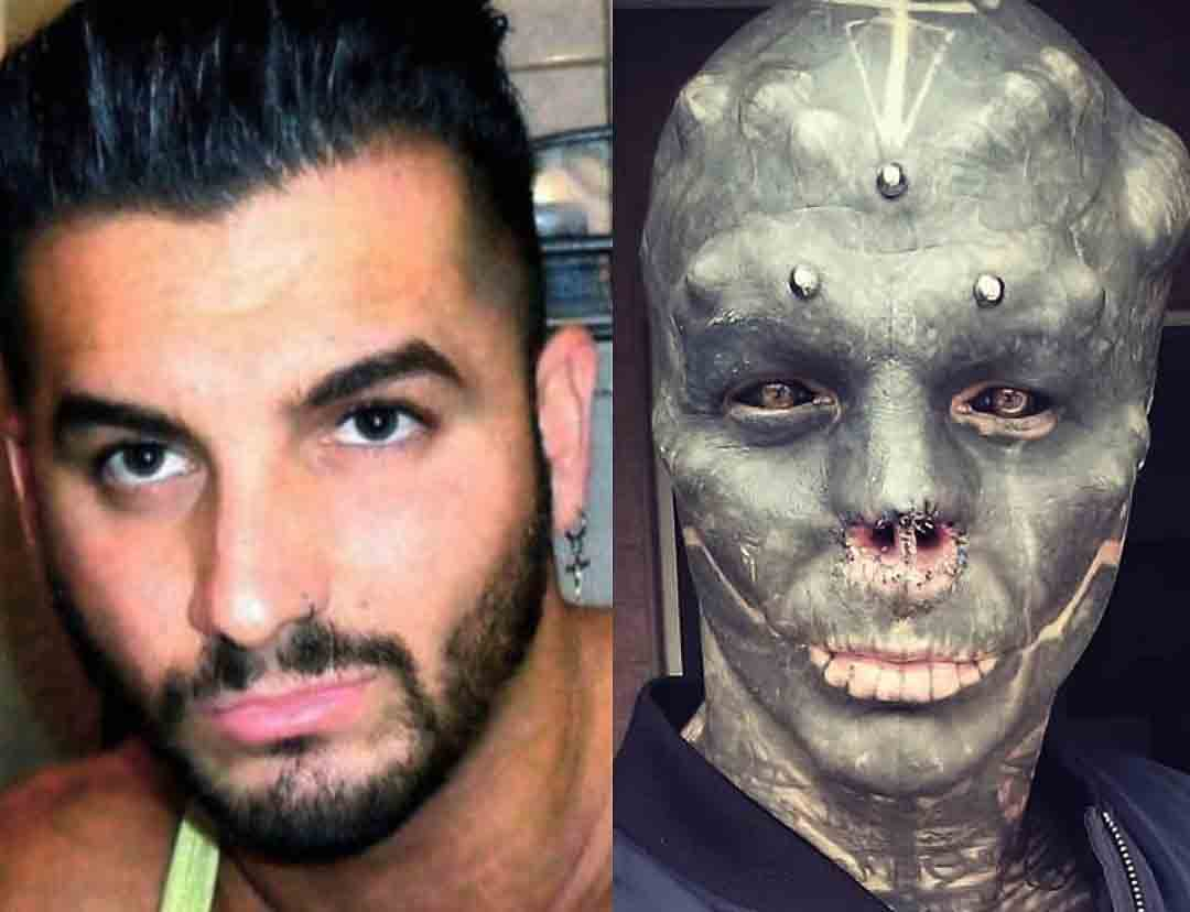 Anthony Loffredo tatua todo o rosto, retira as orelhas e a ponta do nariz para se tornar 'alien negro' Foto: instagram