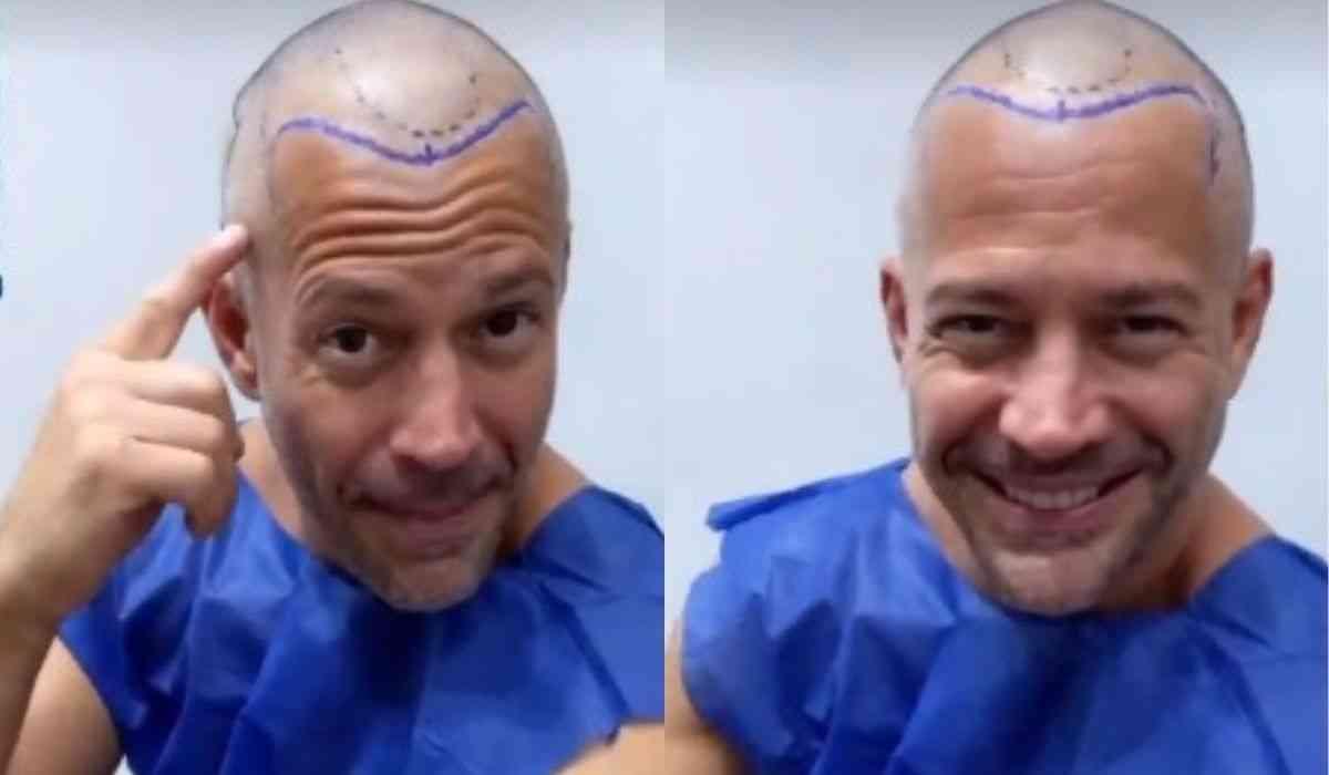 """Malvino Salvador faz procedimento de transplante capilar: """"vou sair com mais cabelo"""" (Foto: Reprodução/Instagram)"""