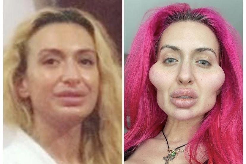 Mulher com as maiores maçãs do rosto do mundo choca com antes e depois (Foto: Reprodução/Instagram)