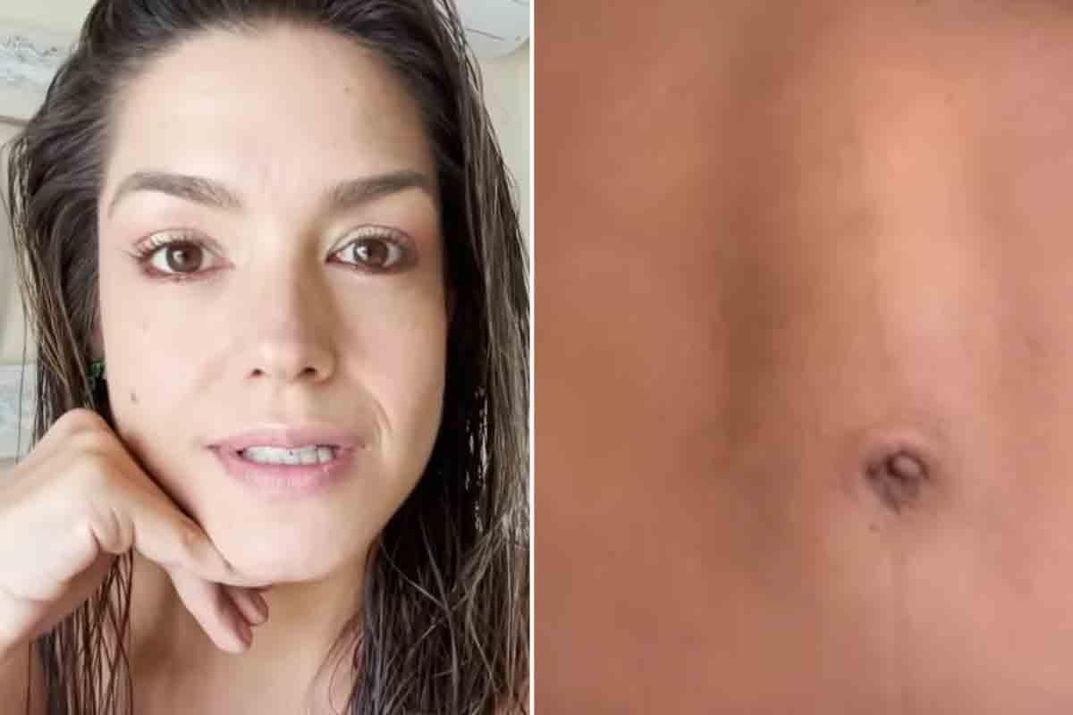 Thais Fersoza revela que fez uma cirurgia para corrigir diástase abdominal (Foto: Reprodução/Instagram)